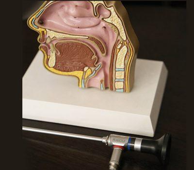 Video-Endoscopia-Nasosinusal-Diagnostica